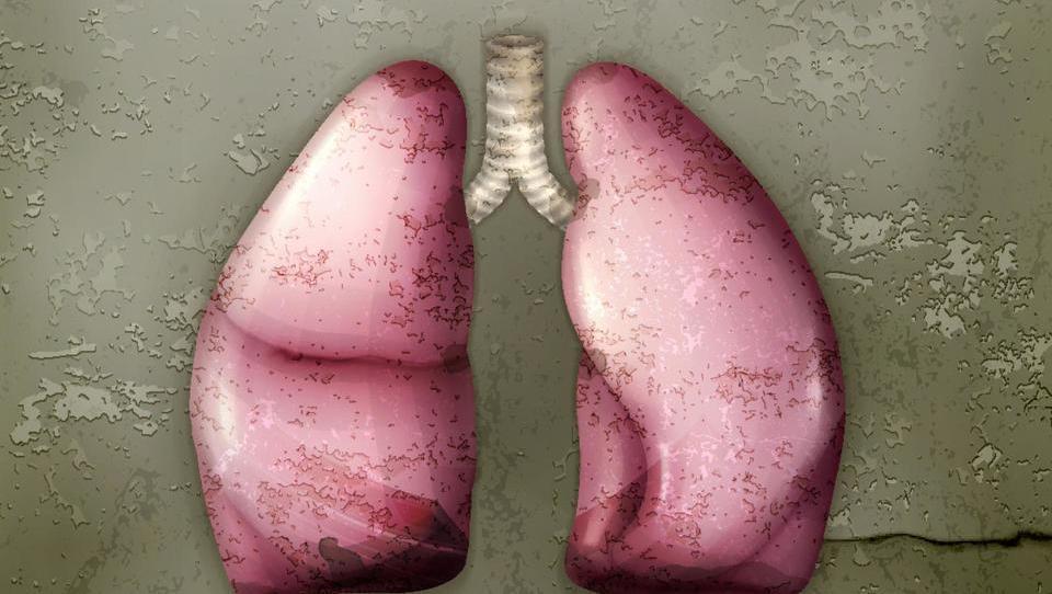 Diagnoza tuberkuloze z analizo urina