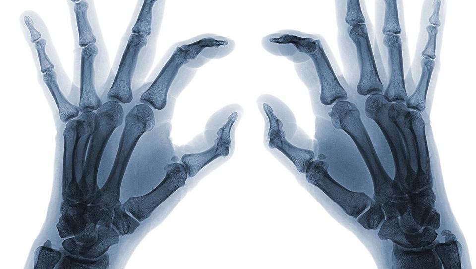 Vnetne revmatične bolezni praviloma jasno opozarjajo nase
